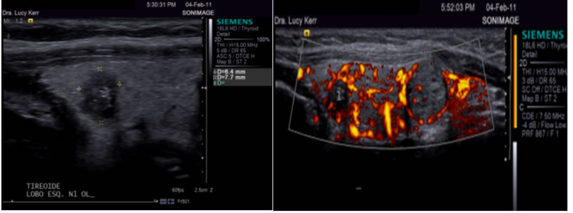 Nodulo maligno na tireoide caracteristicas